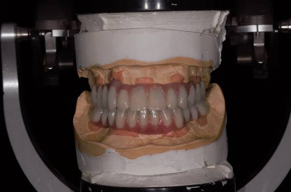 Hybrid Full/Full Implant Bridge